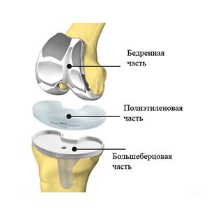 Показания для эндопротезирования коленного сустава